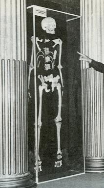 Squelette d'Alexis le Trotteur, Musée du Saguenay, 1977 © Société d'histoire de Charlevoix