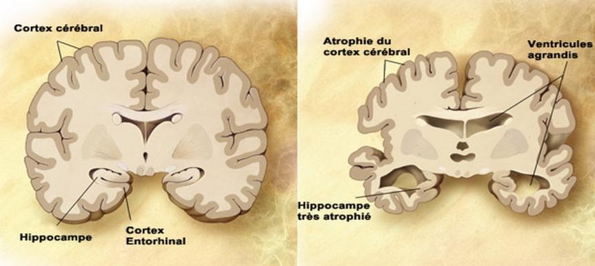 Représentation schématique d'une coupe transversale de cerveau sain (à gauche) et l'atrophie massive d'un cerveau à un stade avancé d'Alzheimer (à droite).